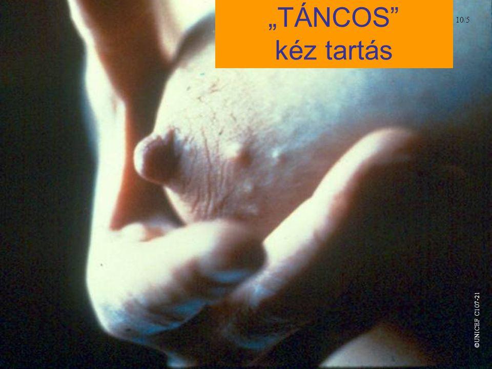 """""""TÁNCOS"""" kéz tartás 10/5 ©UNICEF C107-21"""