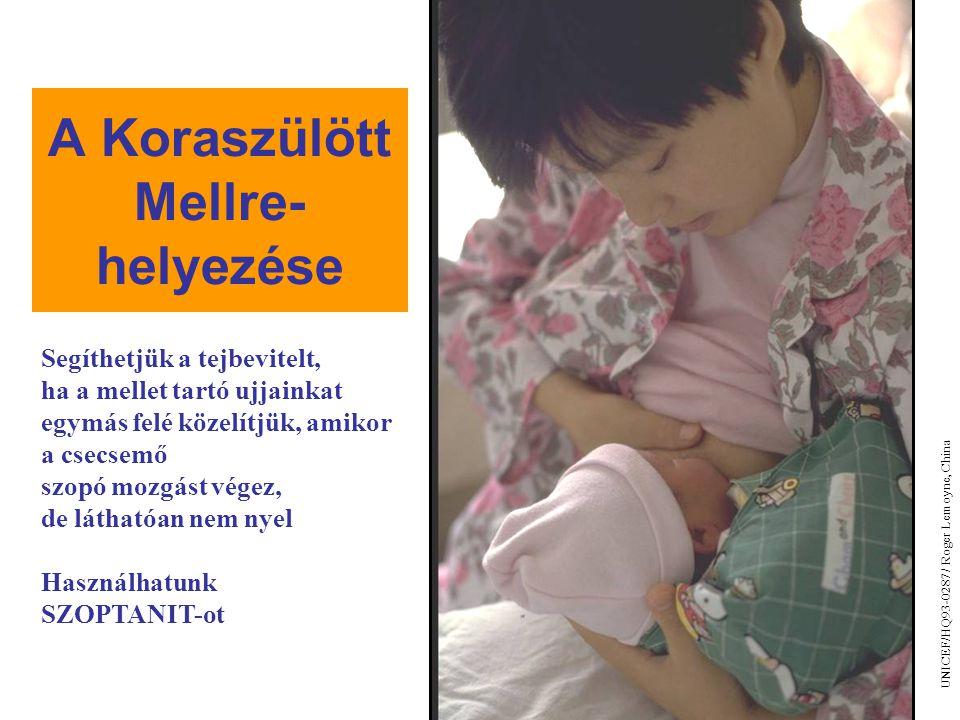 A Koraszülött Mellre- helyezése 10/3 UNICEF/HQ93-0287/ Roger Lemoyne, China Segíthetjük a tejbevitelt, ha a mellet tartó ujjainkat egymás felé közelít