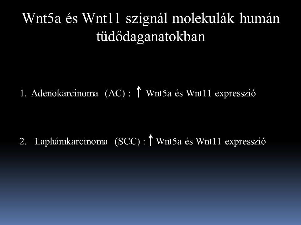 Wnt5a és Wnt11 szignál molekulák humán tüdődaganatokban 1.Adenokarcinoma (AC) : Wnt5a és Wnt11 expresszió 2.