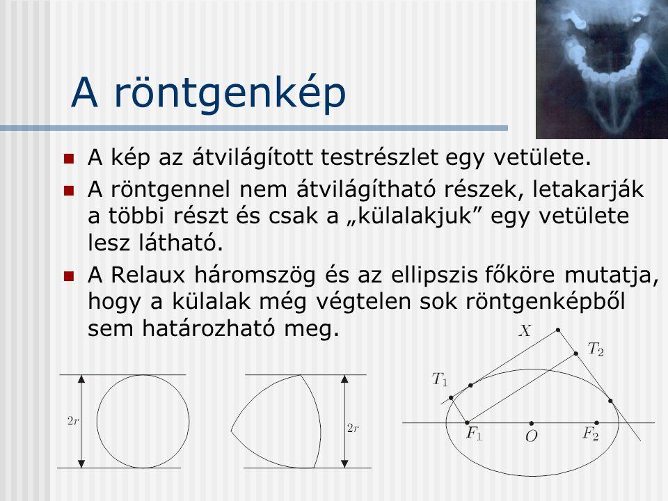 """A röntgenkép A kép az átvilágított testrészlet egy vetülete. A röntgennel nem átvilágítható részek, letakarják a többi részt és csak a """"külalakjuk"""" eg"""