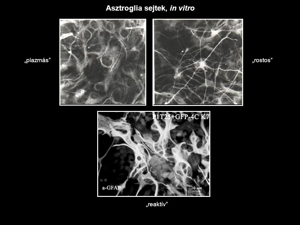 """""""plazmás """"rostos """"reaktív Asztroglia sejtek, in vitro"""
