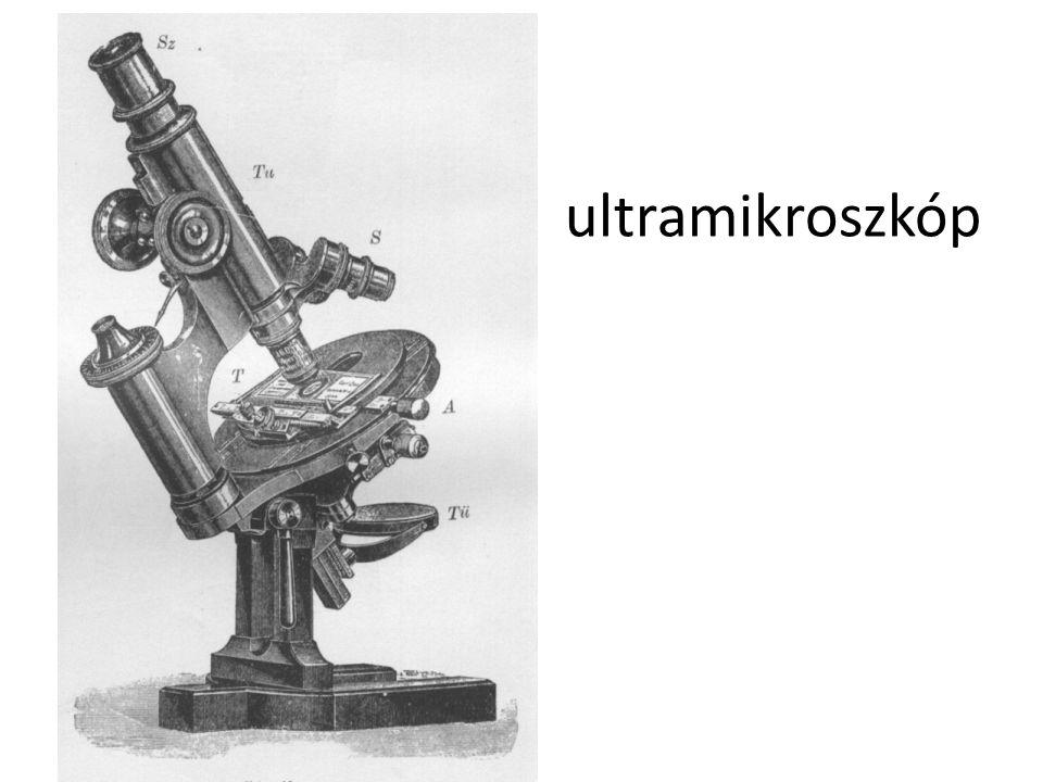 ultramikroszkóp
