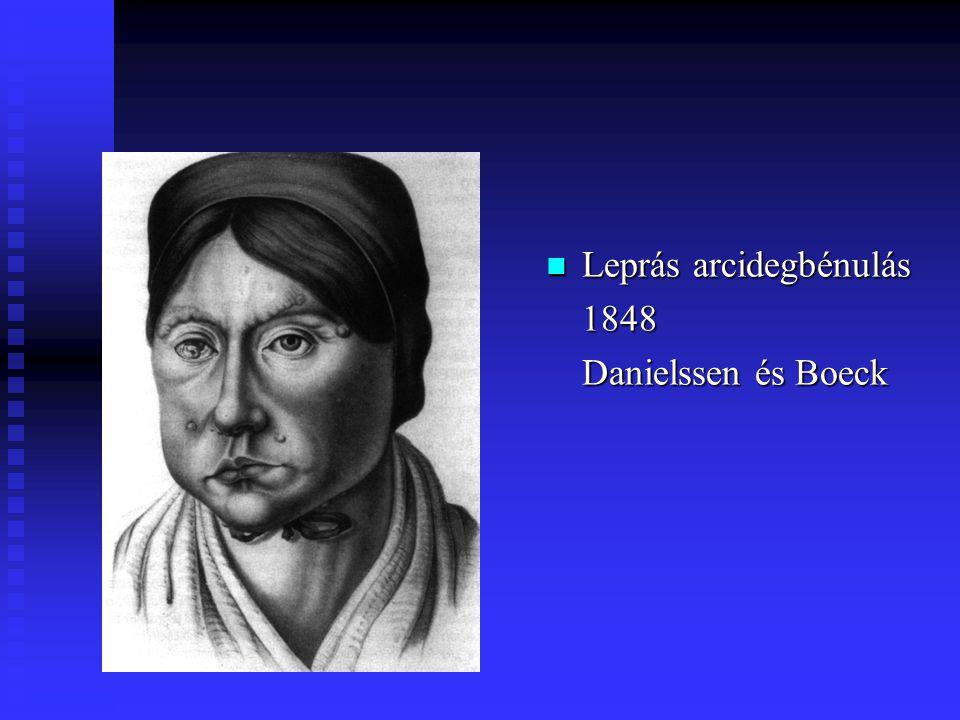 Leprás arcidegbénulás 1848 Danielssen és Boeck