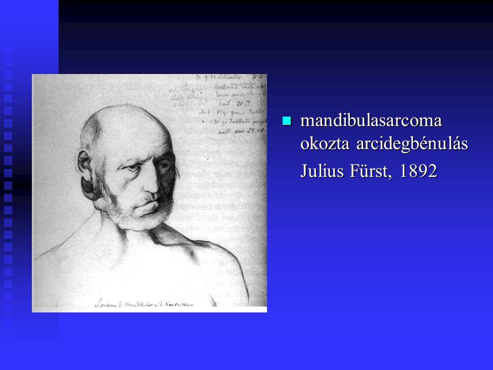 mandibulasarcoma okozta arcidegbénulás Julius Fürst, 1892