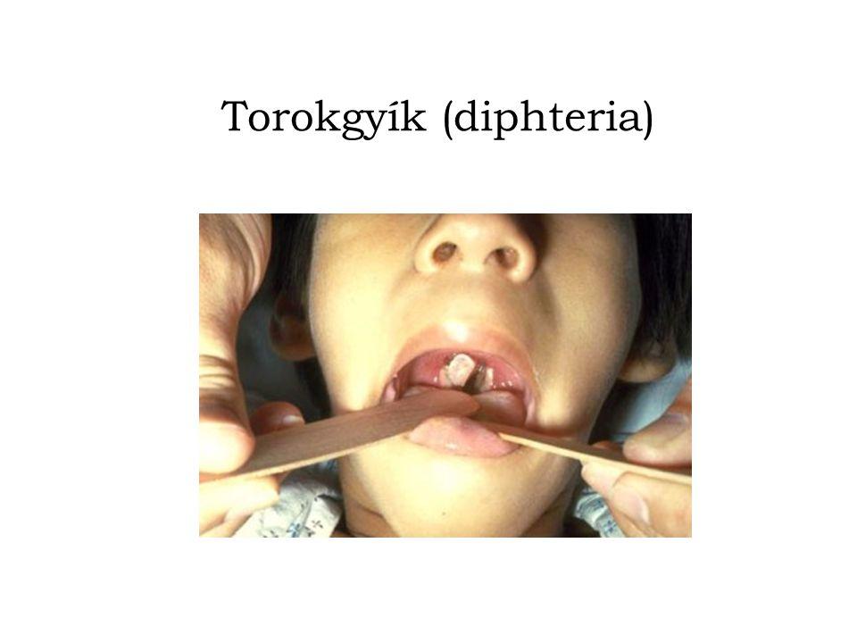 Torokgyík (diphteria)