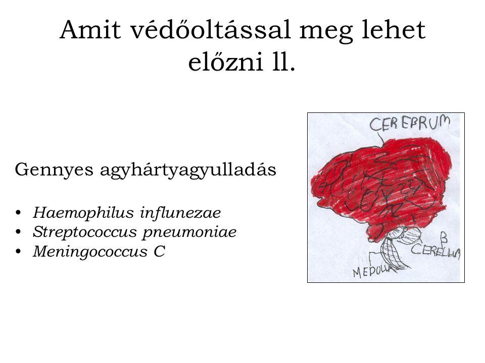 Amit védőoltással meg lehet előzni ll. Gennyes agyhártyagyulladás Haemophilus influnezae Streptococcus pneumoniae Meningococcus C
