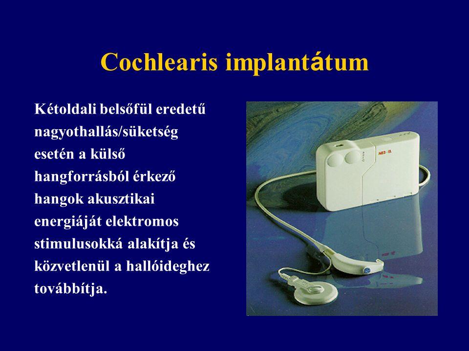 Cochlearis implant á tum Kétoldali belsőfül eredetű nagyothallás/süketség esetén a külső hangforrásból érkező hangok akusztikai energiáját elektromos stimulusokká alakítja és közvetlenül a hallóideghez továbbítja.