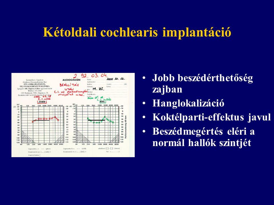 Kétoldali cochlearis implantáció Jobb beszédérthetőség zajban Hanglokalizáció Koktélparti-effektus javul Beszédmegértés eléri a normál hallók szintjét