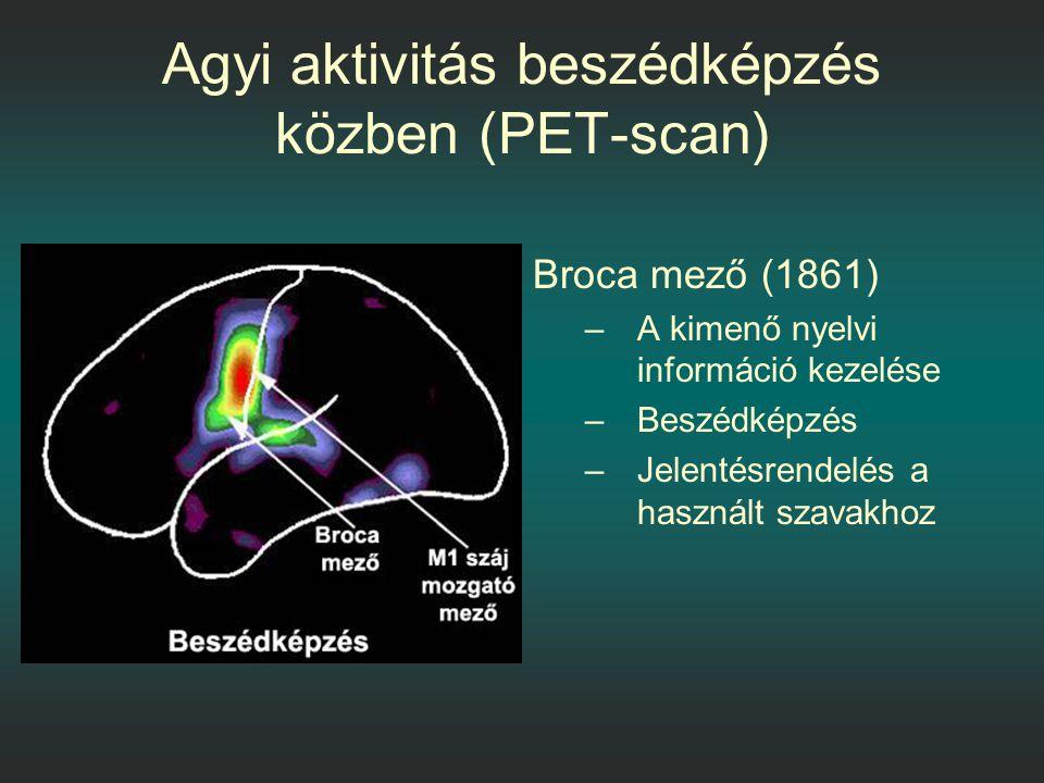 Agyi aktivitás beszédképzés közben (PET-scan) Broca mező (1861) –A kimenő nyelvi információ kezelése –Beszédképzés –Jelentésrendelés a használt szavakhoz