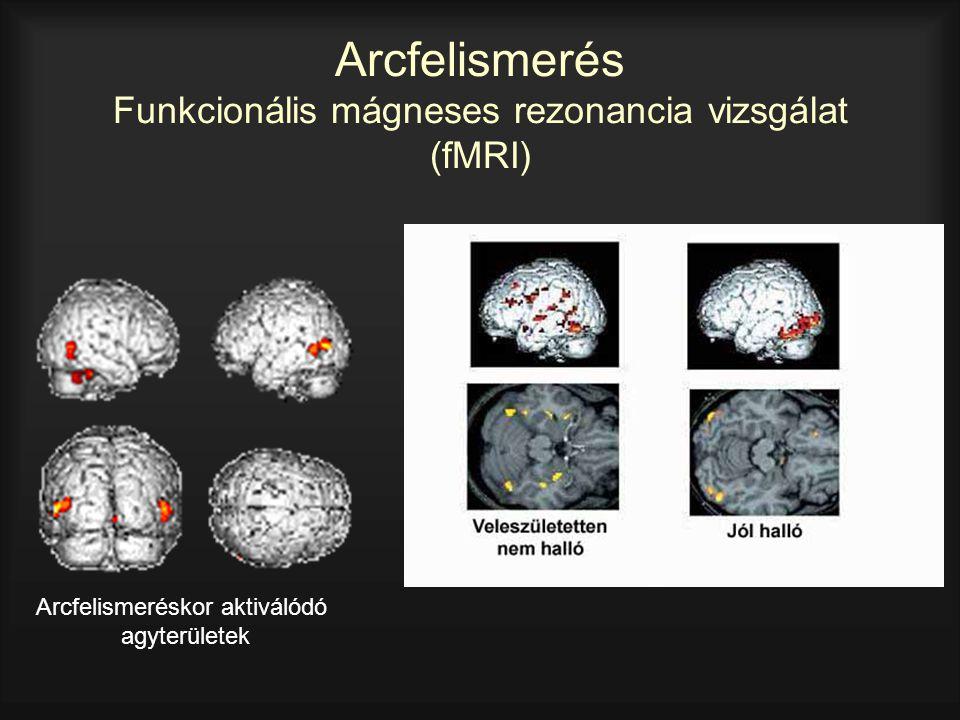 Arcfelismerés Funkcionális mágneses rezonancia vizsgálat (fMRI) Arcfelismeréskor aktiválódó agyterületek