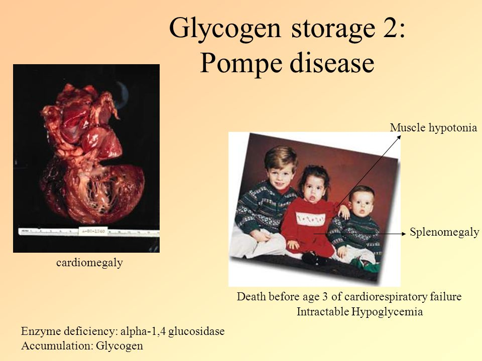 Glycogen storage 2: Pompe disease cardiomegaly Death before age 3 of cardiorespiratory failure Muscle hypotonia Splenomegaly Intractable Hypoglycemia