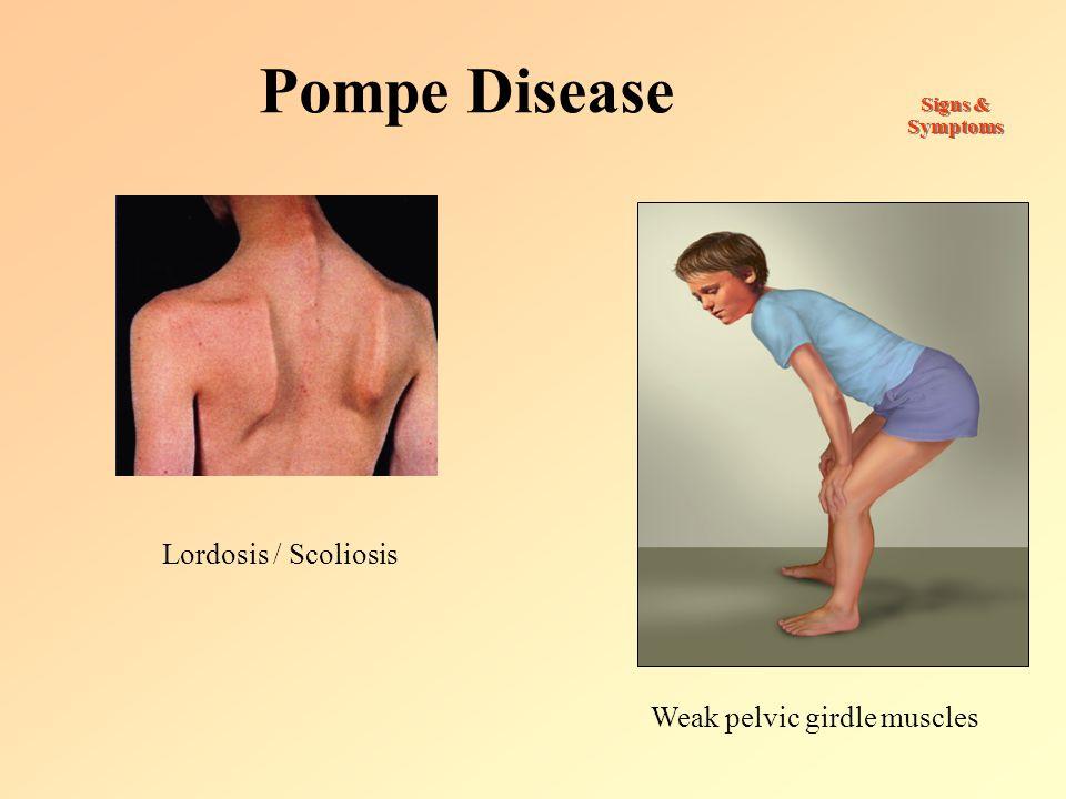 Pompe Disease Signs & Symptoms Weak pelvic girdle muscles Lordosis / Scoliosis