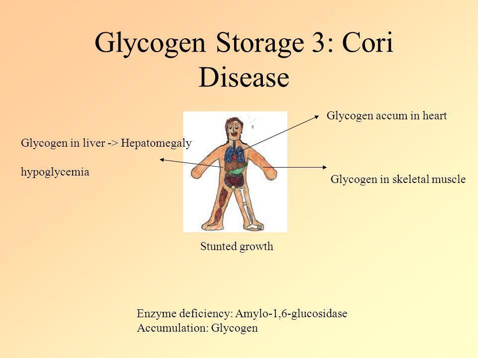 Glycogen Storage 3: Cori Disease Stunted growth Glycogen in liver -> Hepatomegaly hypoglycemia Glycogen accum in heart Glycogen in skeletal muscle Enzyme deficiency: Amylo-1,6-glucosidase Accumulation: Glycogen