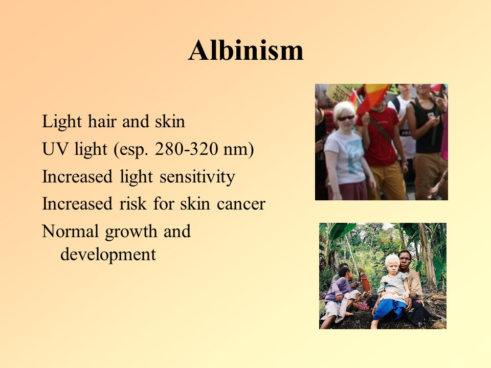 Albinism Light hair and skin UV light (esp. 280-320 nm) Increased light sensitivity Increased risk for skin cancer Normal growth and development