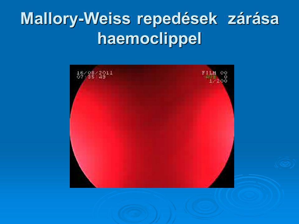 Mallory-Weiss repedések zárása haemoclippel