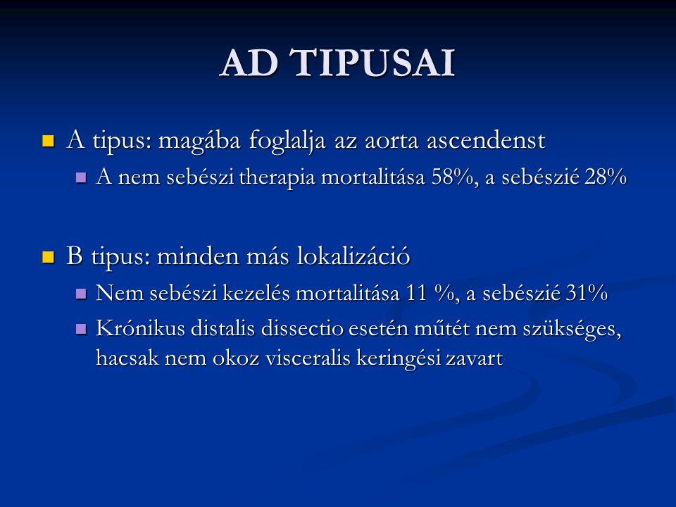 AD TIPUSAI A tipus: magába foglalja az aorta ascendenst A tipus: magába foglalja az aorta ascendenst A nem sebészi therapia mortalitása 58%, a sebészi