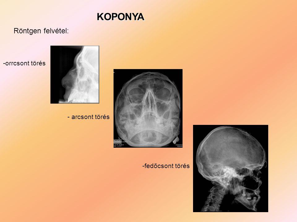 KOPONYA -orrcsont törés - arcsont törés -fedőcsont törés Röntgen felvétel:
