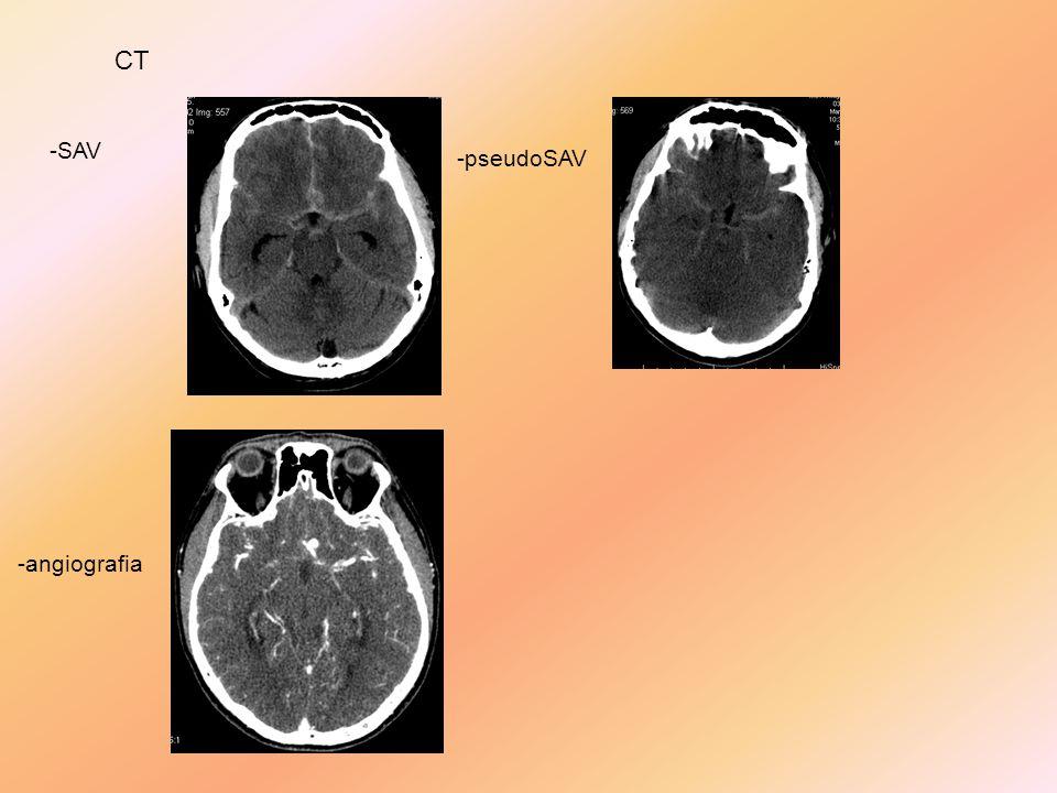 CT -SAV -pseudoSAV -angiografia