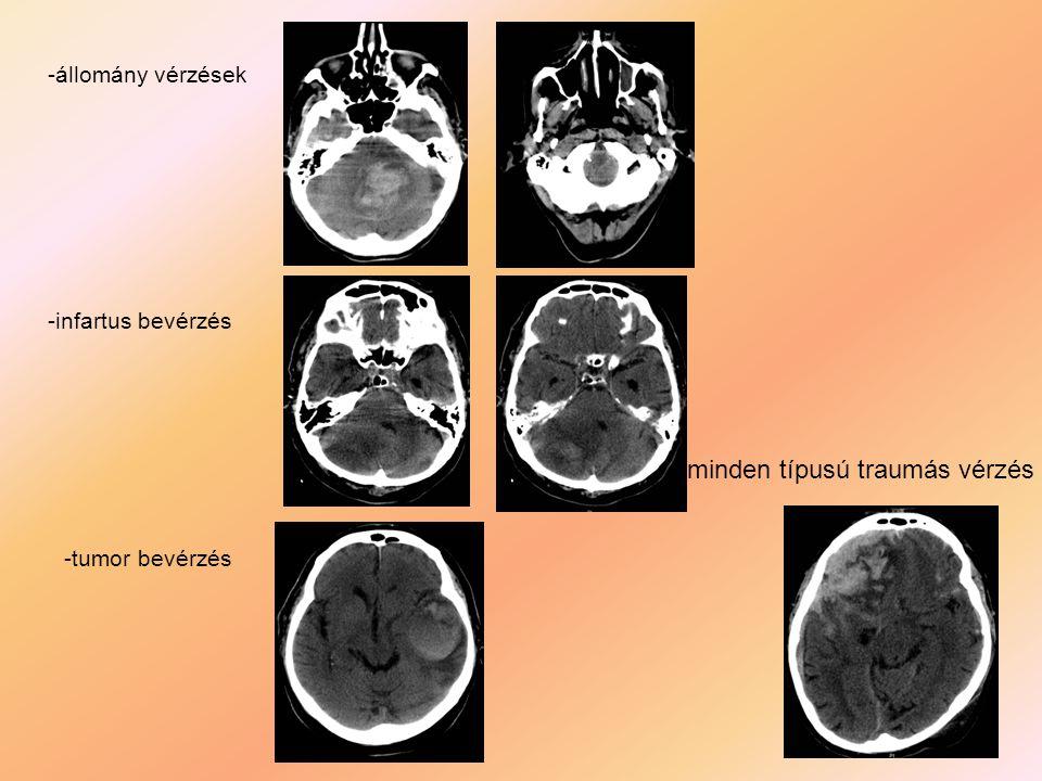 -állomány vérzések -infartus bevérzés -tumor bevérzés - minden típusú traumás vérzés