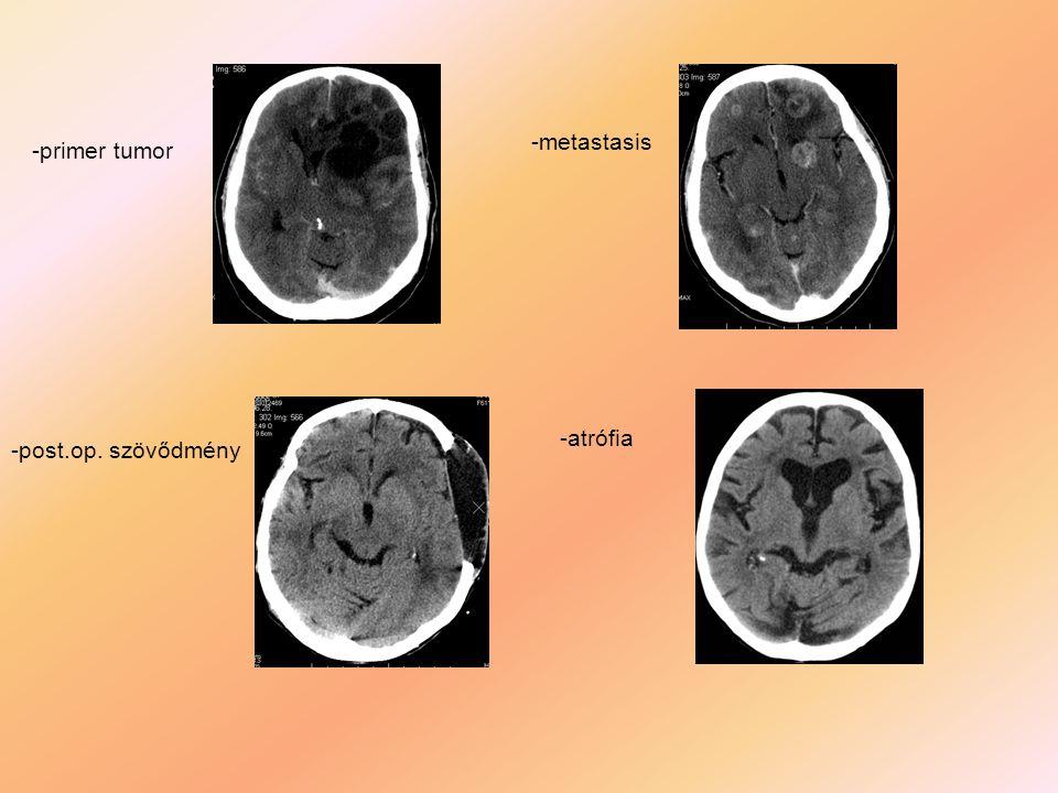-primer tumor -metastasis -post.op. szövődmény -atrófia