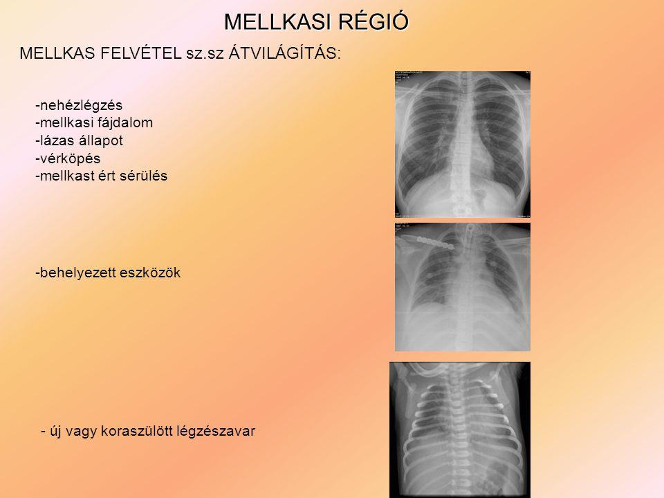 MELLKASI RÉGIÓ MELLKAS FELVÉTEL sz.sz ÁTVILÁGÍTÁS: -nehézlégzés -mellkasi fájdalom -lázas állapot -vérköpés -mellkast ért sérülés -behelyezett eszközök - új vagy koraszülött légzészavar