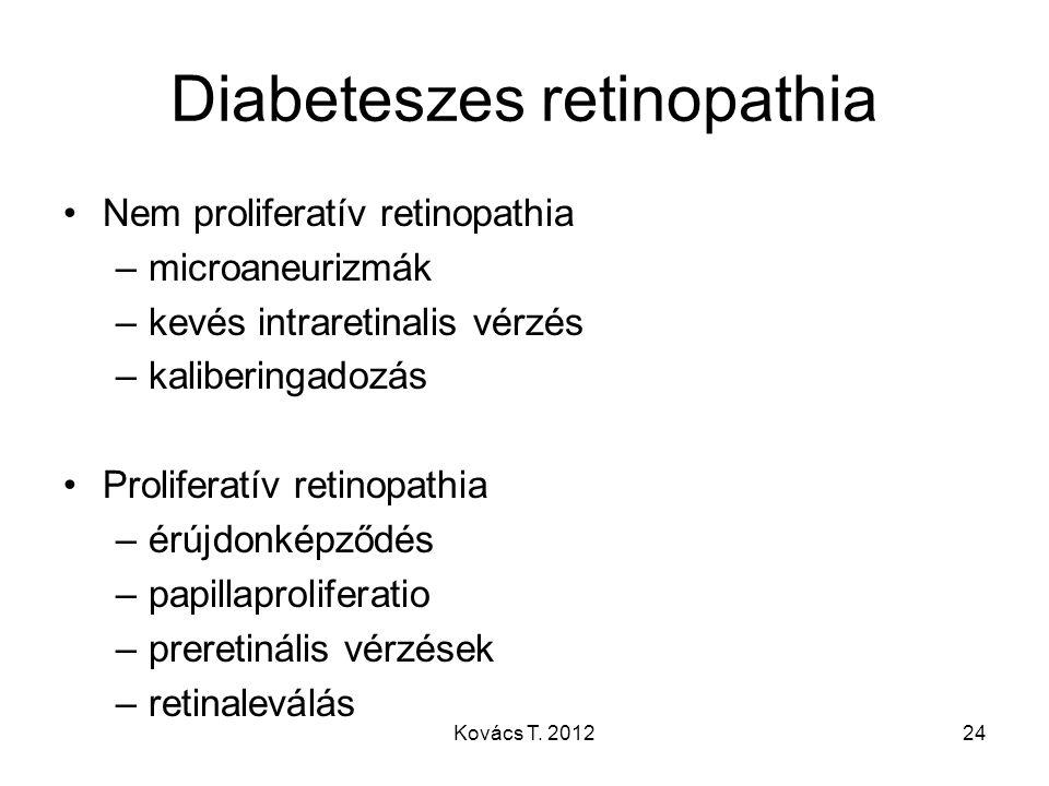 Diabeteszes retinopathia Nem proliferatív retinopathia –microaneurizmák –kevés intraretinalis vérzés –kaliberingadozás Proliferatív retinopathia –érúj