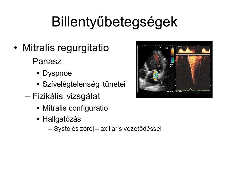 Billentyűbetegségek Mitralis regurgitatio –Panasz Dyspnoe Szívelégtelenség tünetei –Fizikális vizsgálat Mitralis configuratio Hallgatózás –Systolés zö