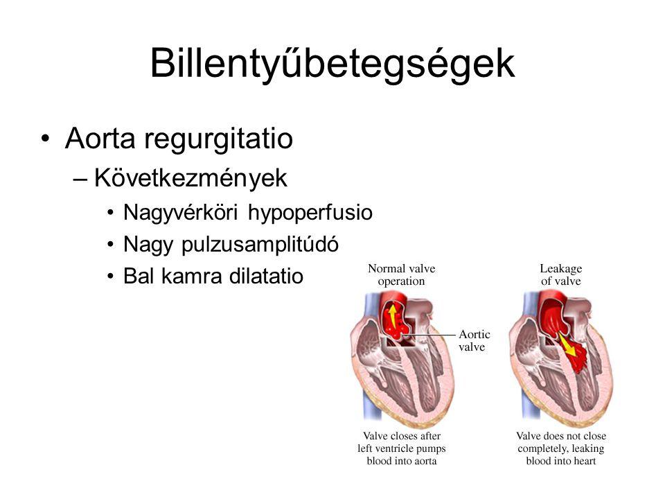 Billentyűbetegségek Aorta regurgitatio –Következmények Nagyvérköri hypoperfusio Nagy pulzusamplitúdó Bal kamra dilatatio
