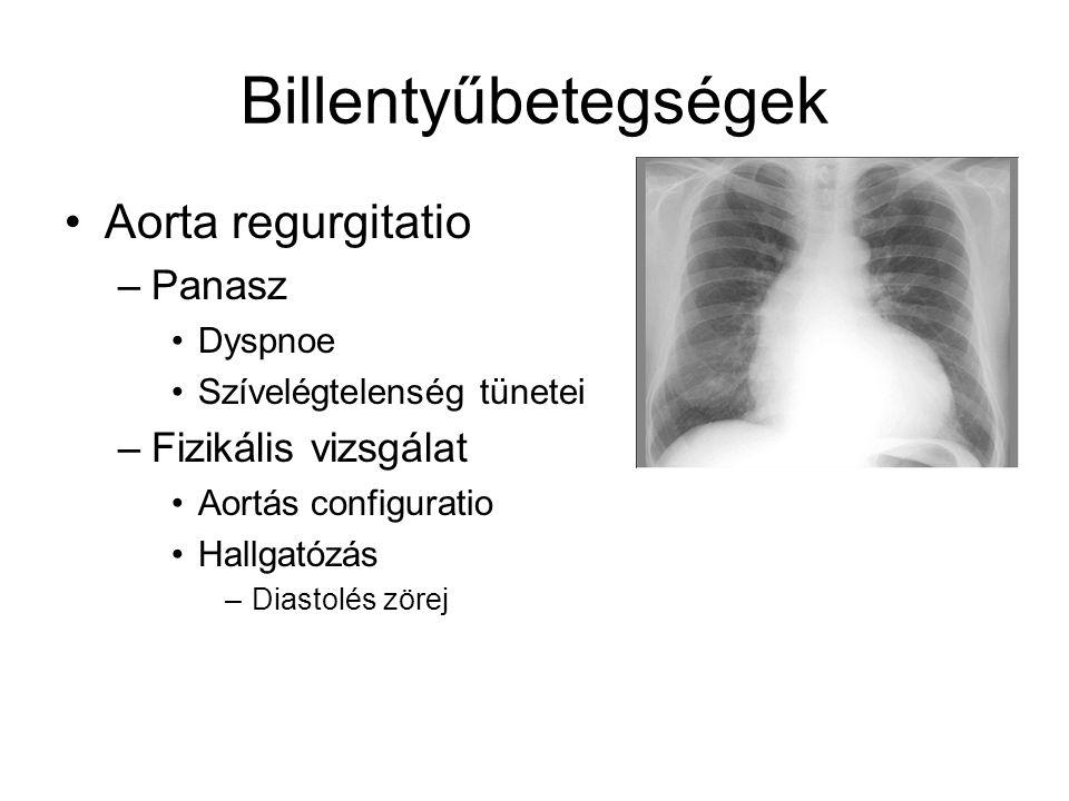 Billentyűbetegségek Aorta regurgitatio –Panasz Dyspnoe Szívelégtelenség tünetei –Fizikális vizsgálat Aortás configuratio Hallgatózás –Diastolés zörej