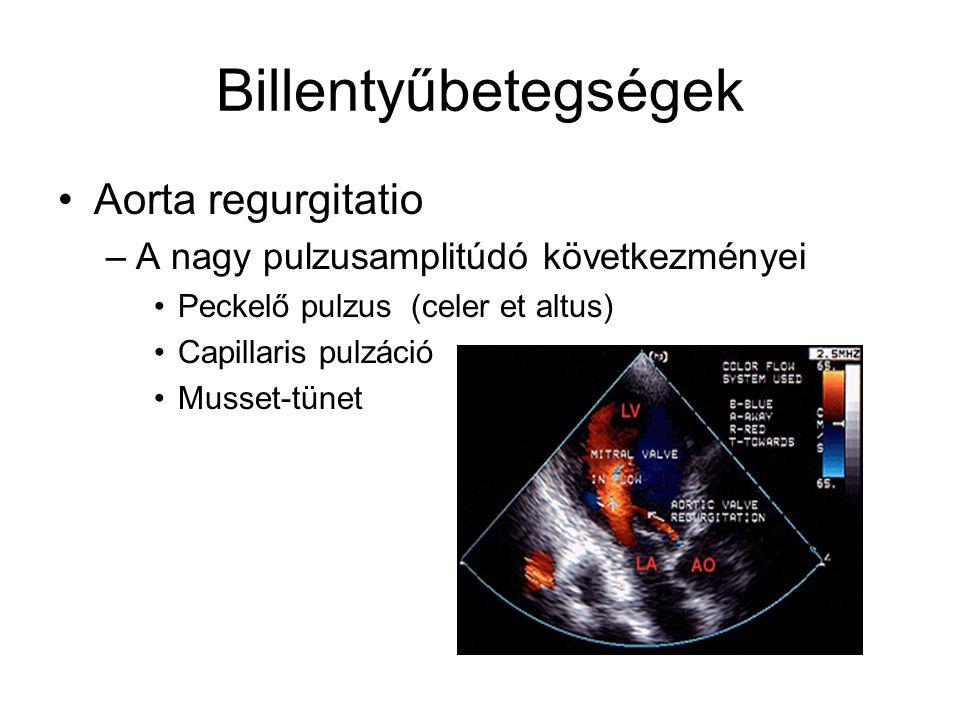 Billentyűbetegségek Aorta regurgitatio –A nagy pulzusamplitúdó következményei Peckelő pulzus (celer et altus) Capillaris pulzáció Musset-tünet