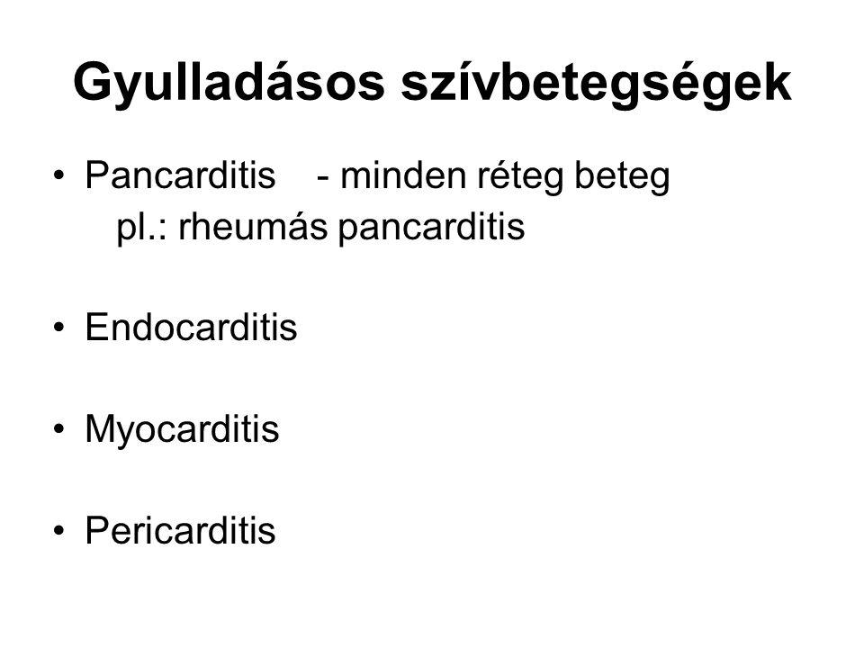 Gyulladásos szívbetegségek Pancarditis - minden réteg beteg pl.: rheumás pancarditis Endocarditis Myocarditis Pericarditis