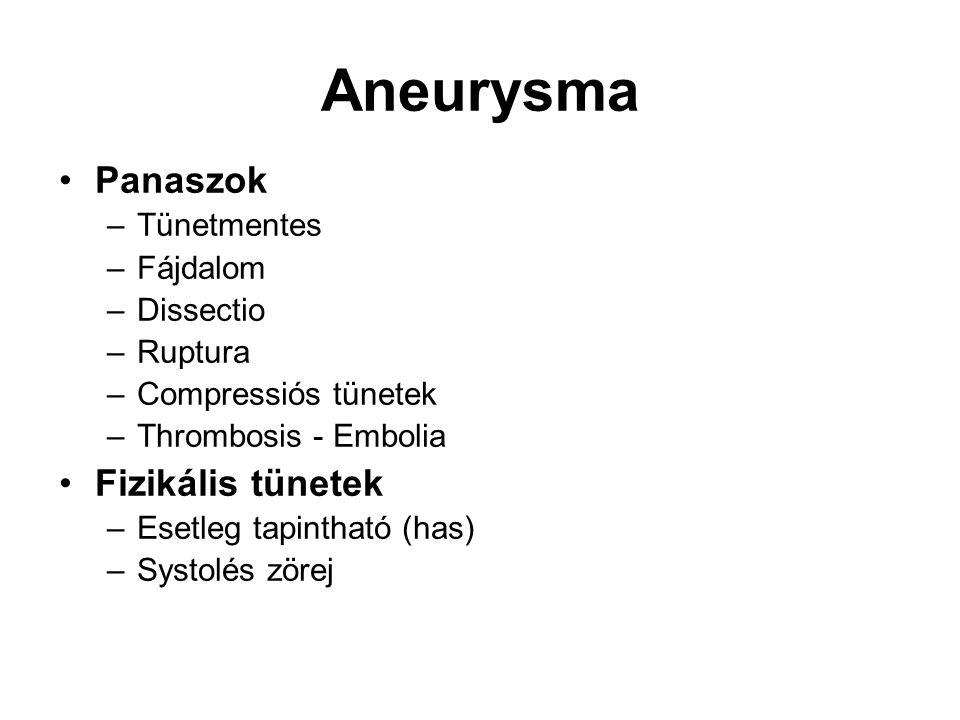 Aneurysma Panaszok –Tünetmentes –Fájdalom –Dissectio –Ruptura –Compressiós tünetek –Thrombosis - Embolia Fizikális tünetek –Esetleg tapintható (has) –