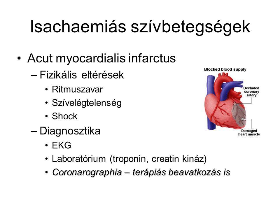 Isachaemiás szívbetegségek Acut myocardialis infarctus –Fizikális eltérések Ritmuszavar Szívelégtelenség Shock –Diagnosztika EKG Laboratórium (troponi