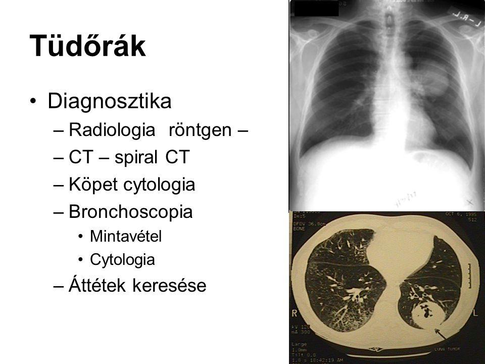 Tüdőrák Diagnosztika –Radiologia röntgen – –CT – spiral CT –Köpet cytologia –Bronchoscopia Mintavétel Cytologia –Áttétek keresése