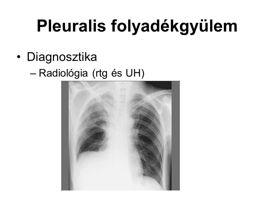 Pleuralis folyadékgyülem Diagnosztika –Radiológia (rtg és UH)