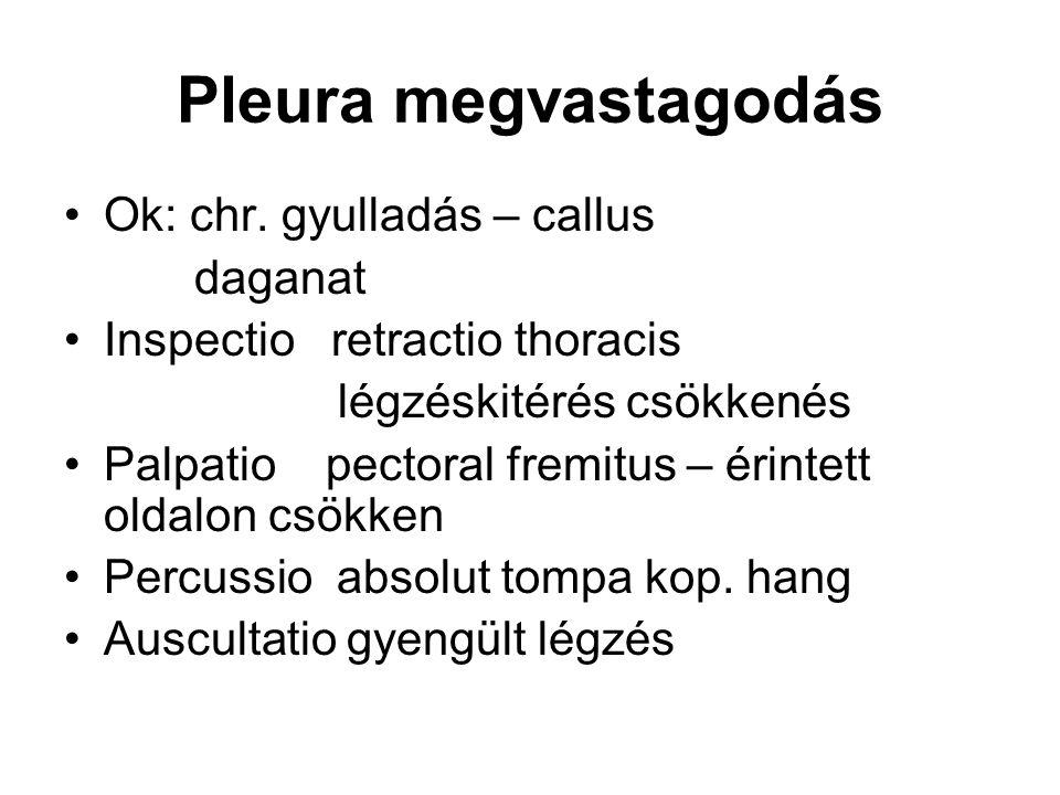 Pleura megvastagodás Ok: chr. gyulladás – callus daganat Inspectio retractio thoracis légzéskitérés csökkenés Palpatio pectoral fremitus – érintett ol