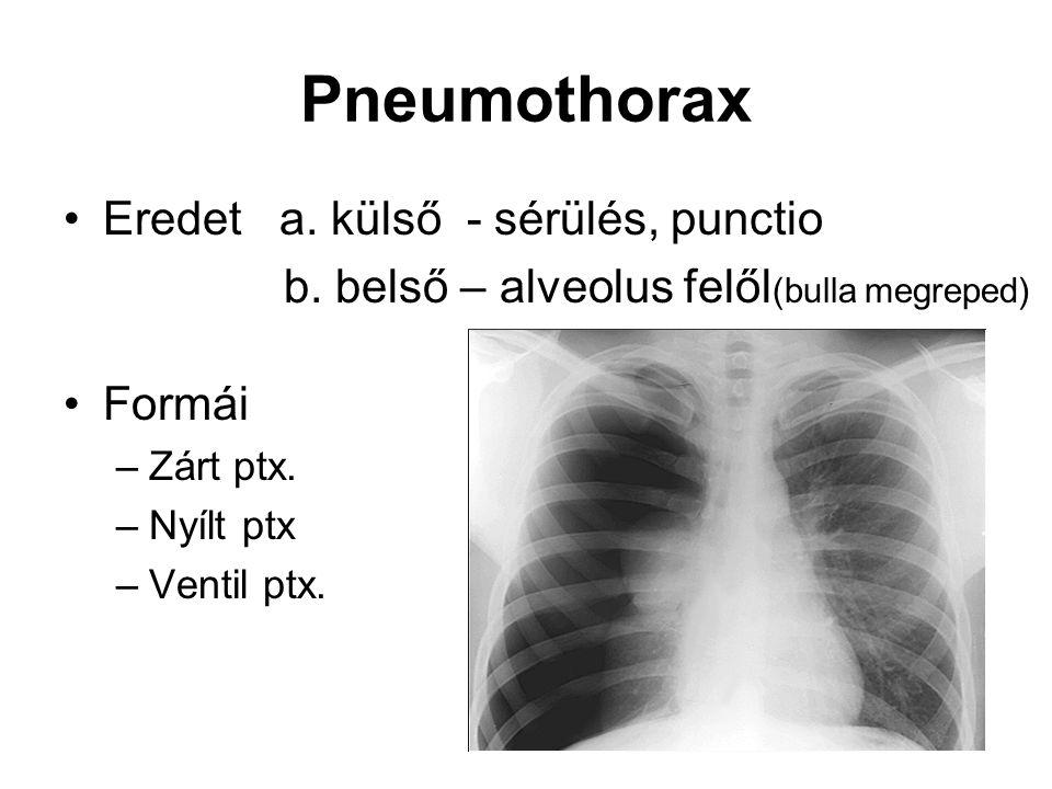 Pneumothorax Eredet a. külső - sérülés, punctio b. belső – alveolus felől (bulla megreped) Formái –Zárt ptx. –Nyílt ptx –Ventil ptx.
