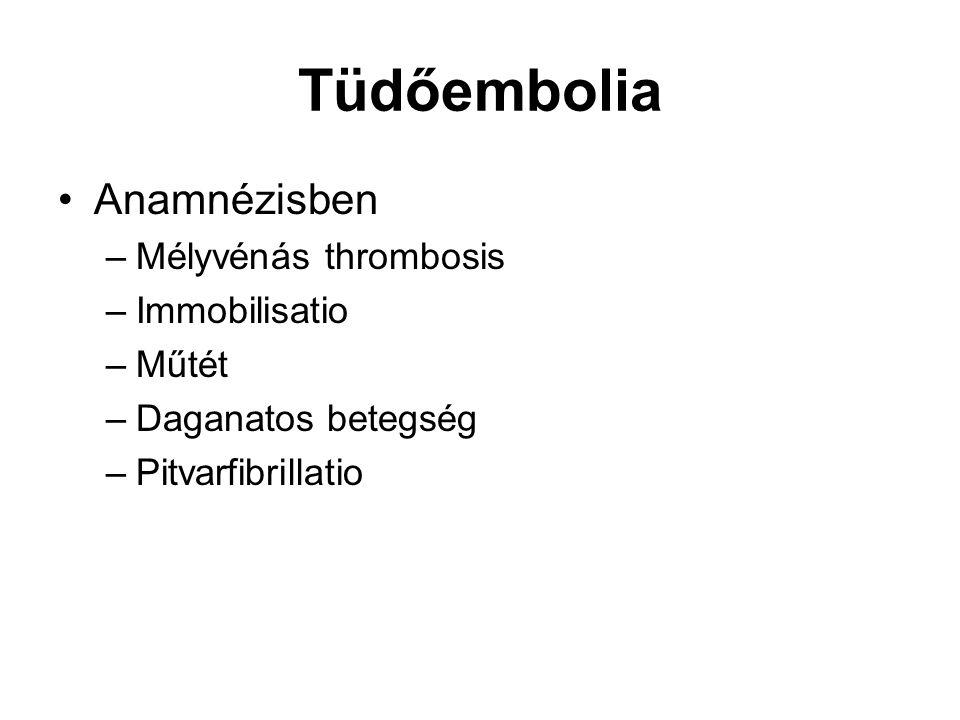Tüdőembolia Anamnézisben –Mélyvénás thrombosis –Immobilisatio –Műtét –Daganatos betegség –Pitvarfibrillatio
