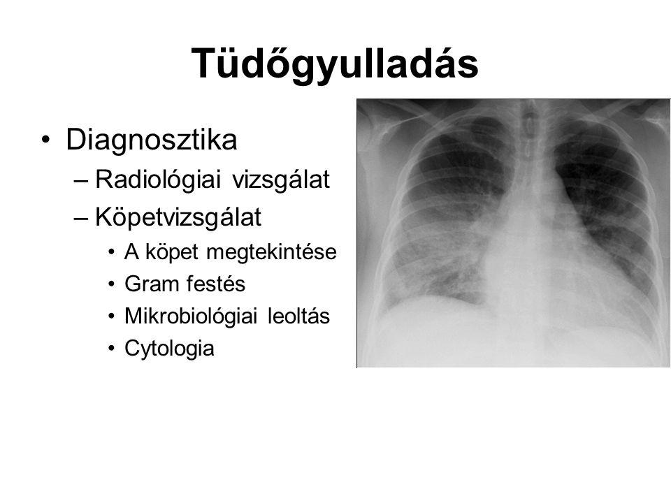 Tüdőgyulladás Diagnosztika –Radiológiai vizsgálat –Köpetvizsgálat A köpet megtekintése Gram festés Mikrobiológiai leoltás Cytologia
