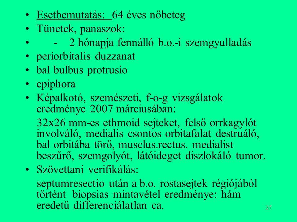27 Esetbemutatás: 64 éves nőbeteg Tünetek, panaszok: - 2 hónapja fennálló b.o.-i szemgyulladás periorbitalis duzzanat bal bulbus protrusio epiphora Ké