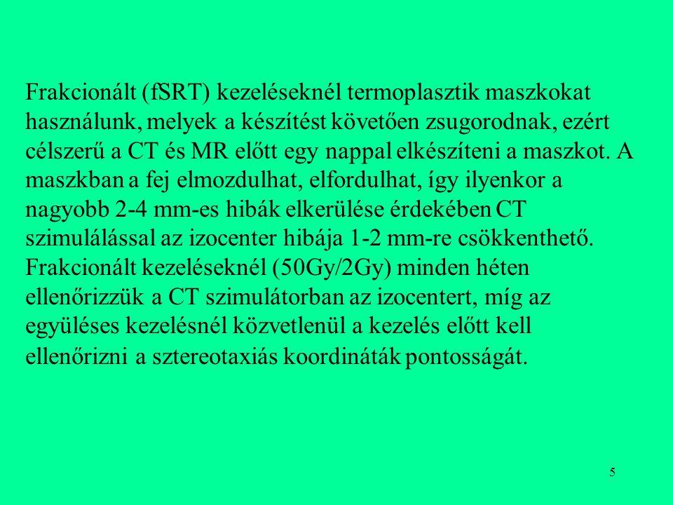 5 Frakcionált (fSRT) kezeléseknél termoplasztik maszkokat használunk, melyek a készítést követően zsugorodnak, ezért célszerű a CT és MR előtt egy nap