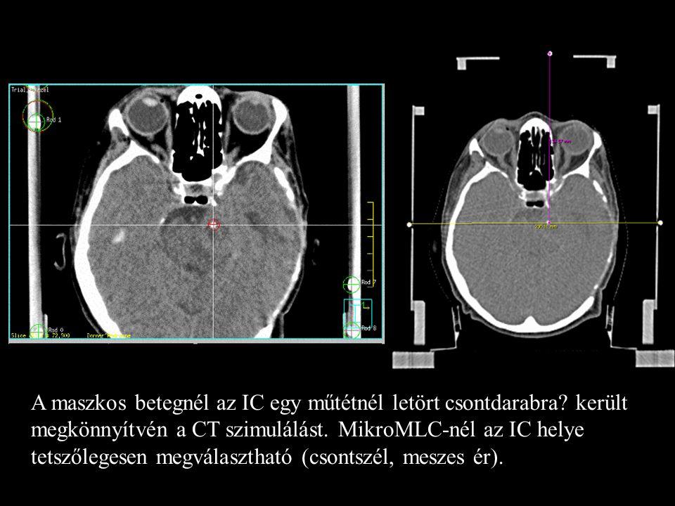 6 A maszkos betegnél az IC egy műtétnél letört csontdarabra? került megkönnyítvén a CT szimulálást. MikroMLC-nél az IC helye tetszőlegesen megválaszth