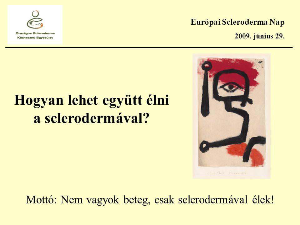 Európai Scleroderma Nap 2009. június 29. Hogyan lehet együtt élni a sclerodermával.