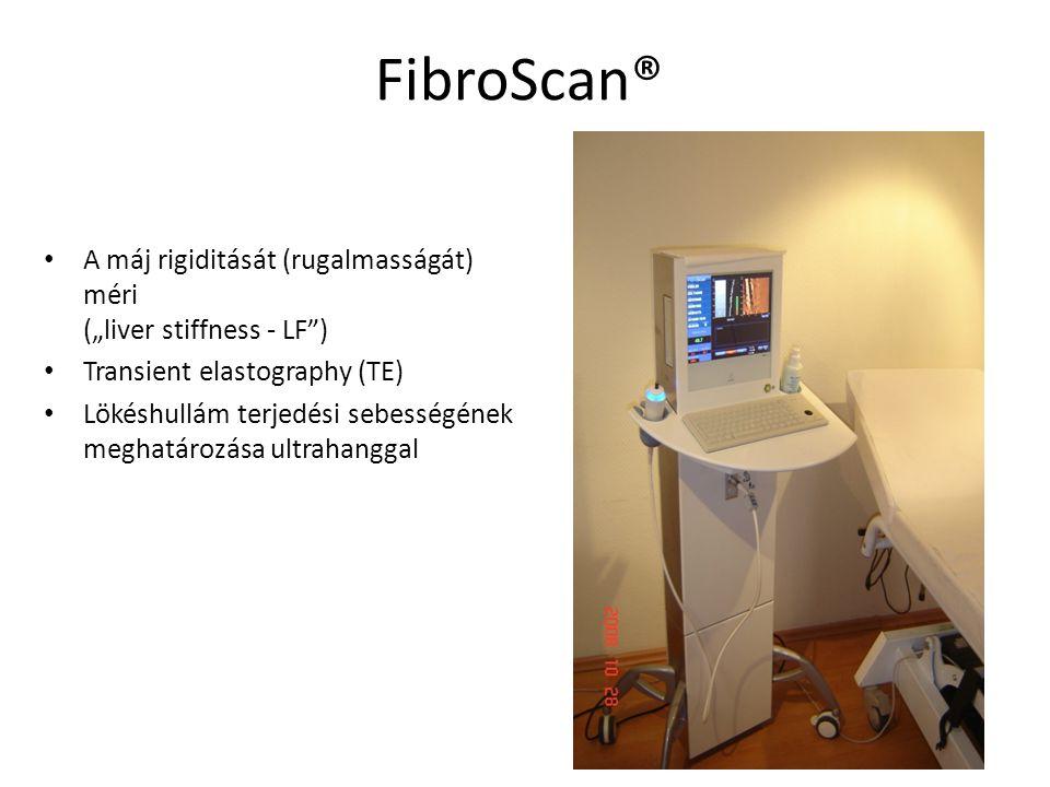 """FibroScan® A máj rigiditását (rugalmasságát) méri (""""liver stiffness - LF"""") Transient elastography (TE) Lökéshullám terjedési sebességének meghatározás"""