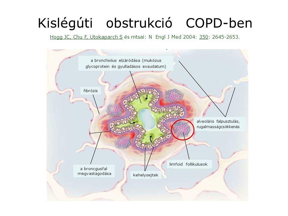 A limfoid follikulusok kialakulása környezeti kárositó hatások (lipopoliszaharidák, dohányfüst, baktériumok) következményeként krónikus obstruktiv tüdőbetegségben (COPD) Brusselle GG, Demoor T, Bracke KR és mtsai: Lymphoid follicles in (very) severe COPD – benefical or harmaful .