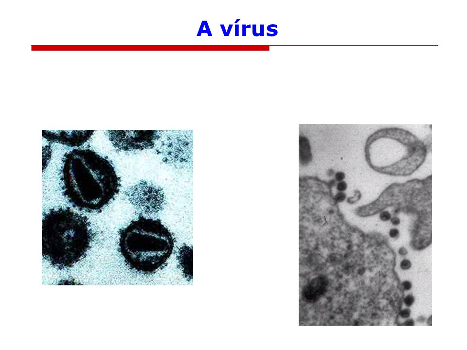 A HIV eredete
