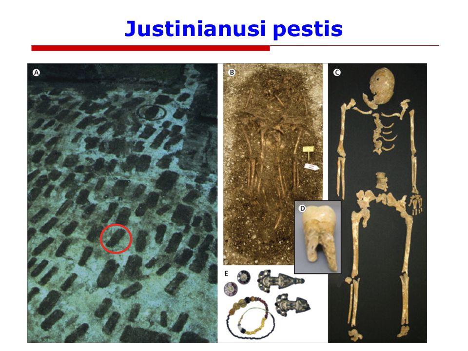 Justinianusi pestis