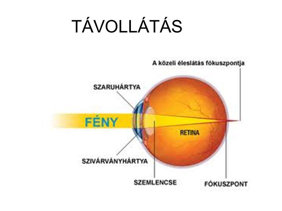TÁVOLLÁTÁS
