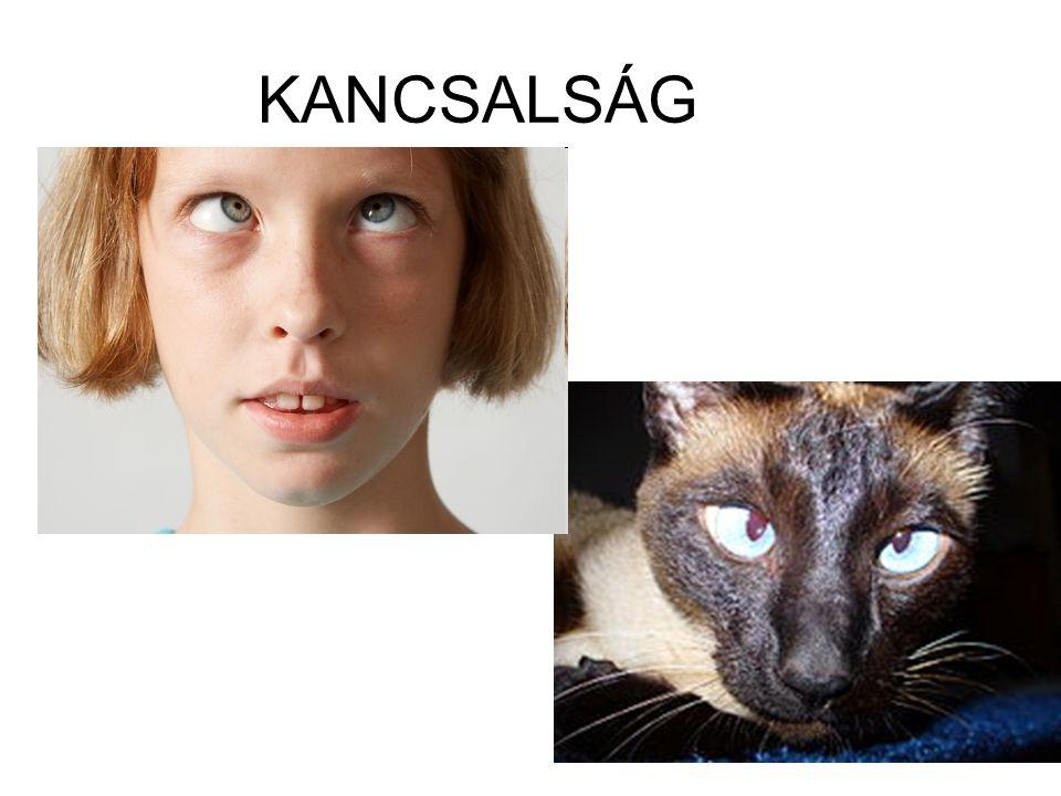 KANCSALSÁG
