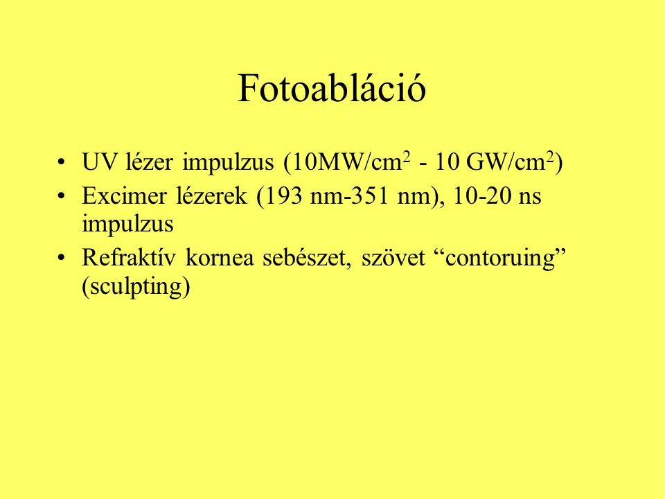 """Fotoabláció UV lézer impulzus (10MW/cm 2 - 10 GW/cm 2 ) Excimer lézerek (193 nm-351 nm), 10-20 ns impulzus Refraktív kornea sebészet, szövet """"contorui"""